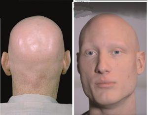 אלופציה אראטה טוטאליס, alopecia areata totlis